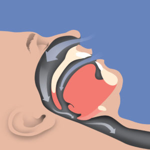 obstructive sleep apnea and snoring - narrowed airway