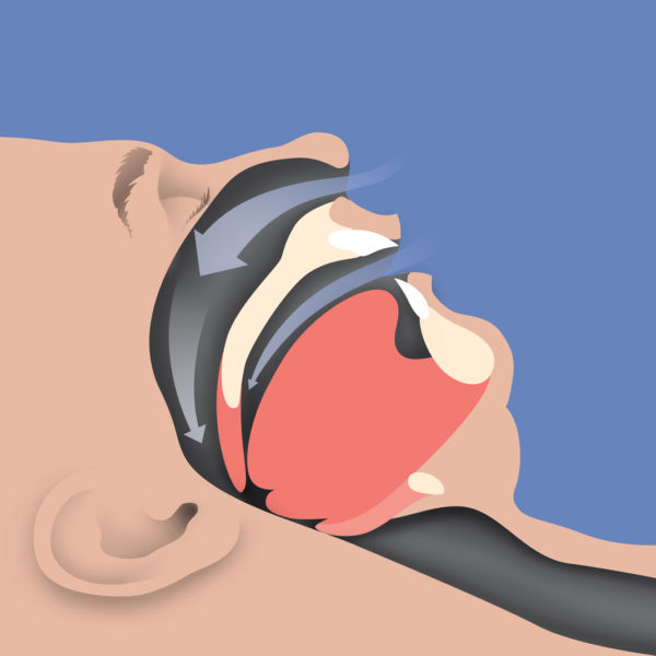 obstructive sleep apnea airway