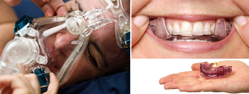 Cpap Vs Oral Device Therapy