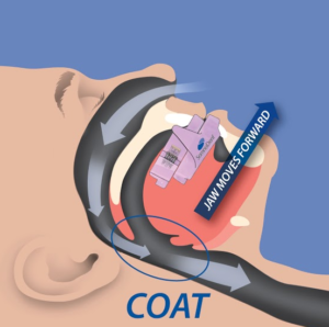 Continuous Open Airway Therapy (COAT)