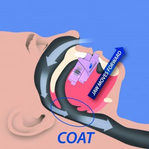 what is sleep apnea - how COAT works